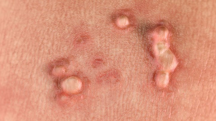hpv burning skin sensation