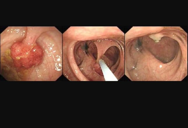colon cancer benign polyps)