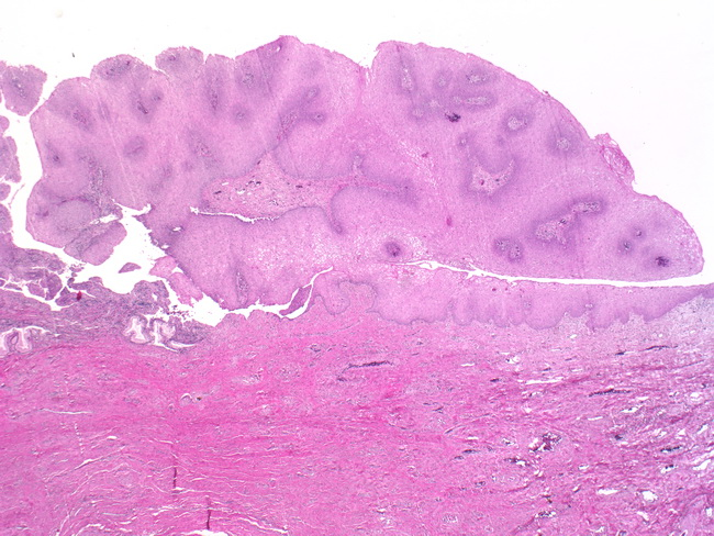 hpv skin pathology parazitii intestinali si halena