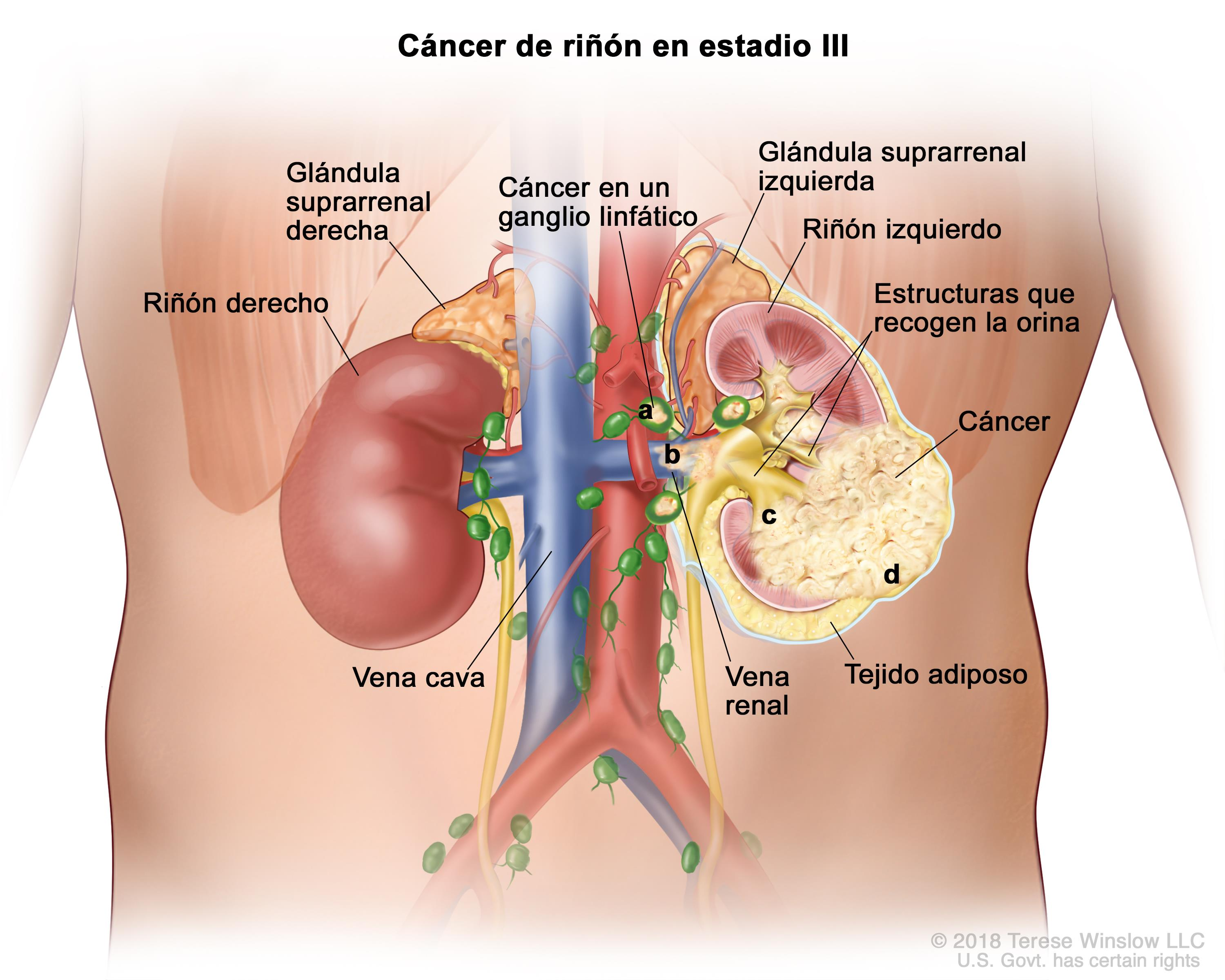 cancer renal estadios