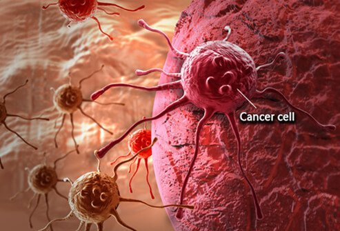 benign cancer stages