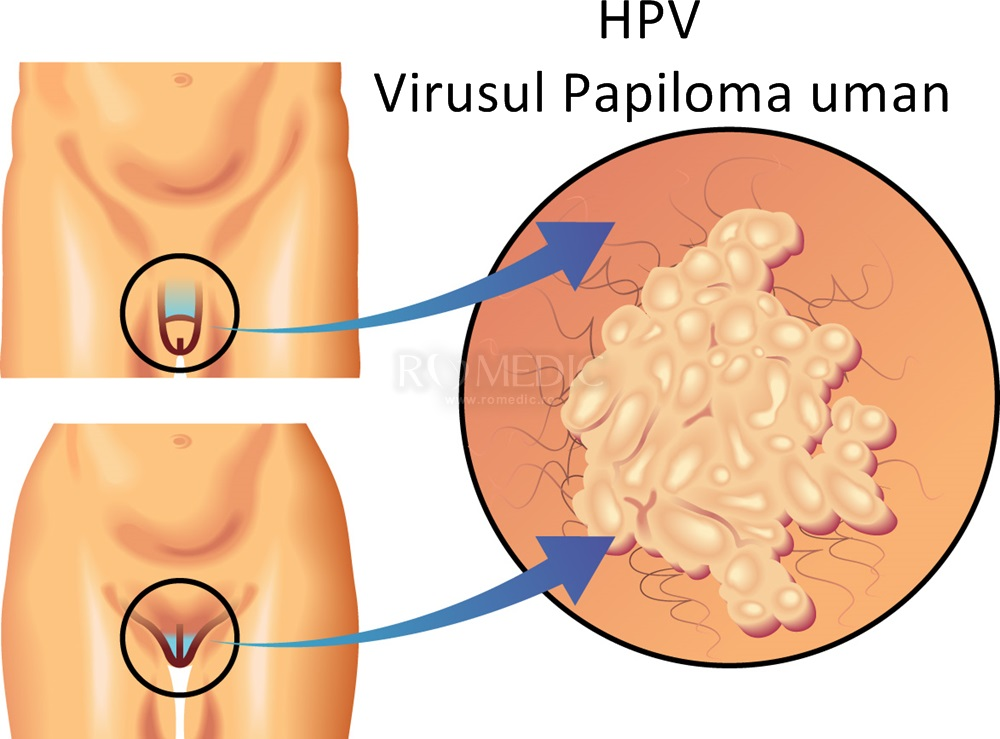 precancerous cells from hpv