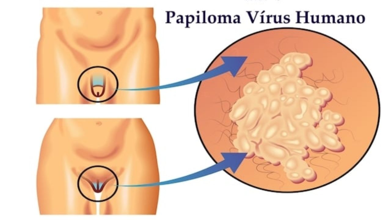 Hpv causes itching Hpv genital irritation Hpv mauvaise odeur
