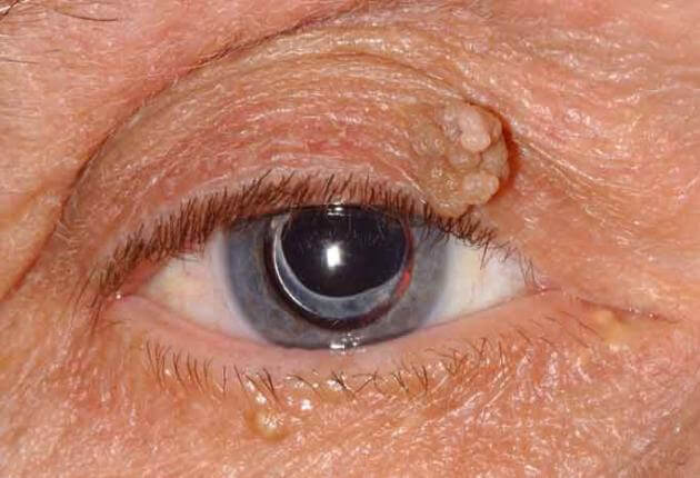 how is eyelid papilloma removed