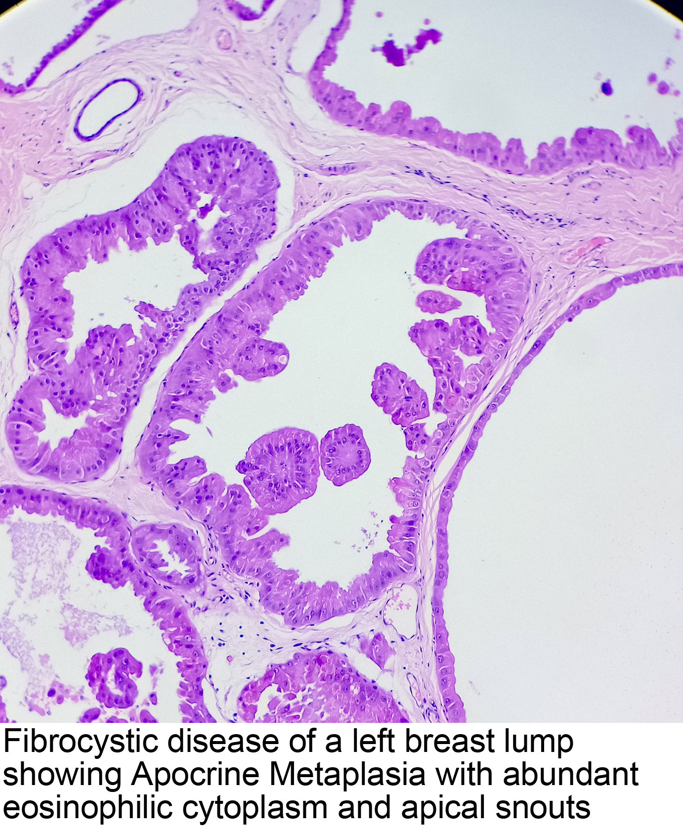 papillary lesion of breast pathology outlines)