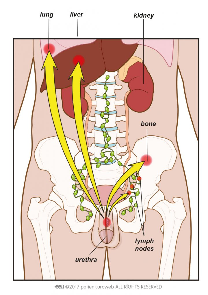 testicular cancer to lymph nodes