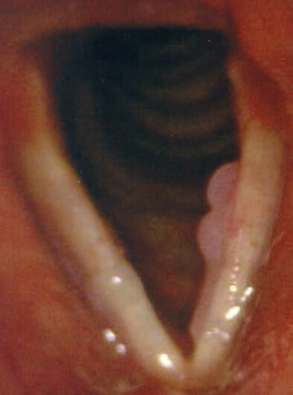 papilloma 3 hpv virus how you get it