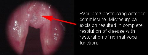 papillomatosis in the larynx)