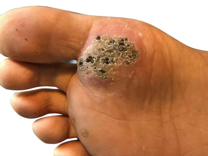 wart in foot causes)