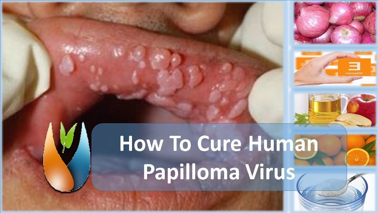cure for papiloma)