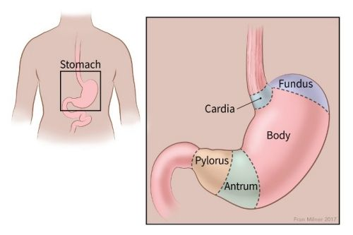 cancer of gastric cardia)