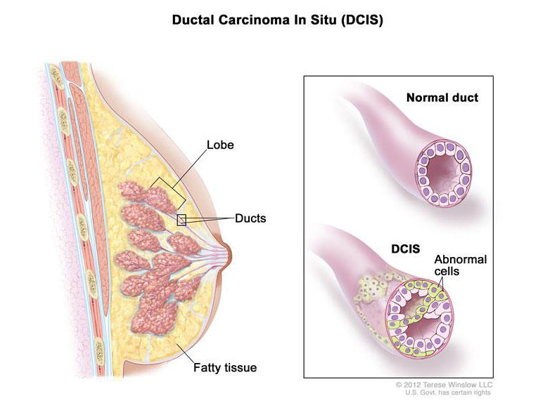 intraductal papilloma risk of cancer)