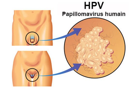 hpv douleur homme)