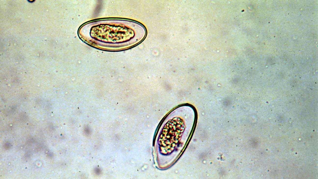 enterobius eggs