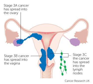 uterine cancer is curable)