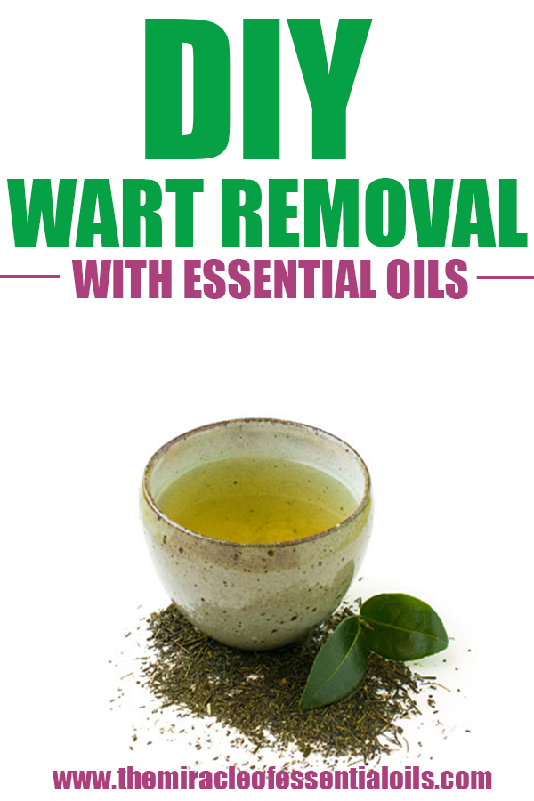 warts on hands essential oils)