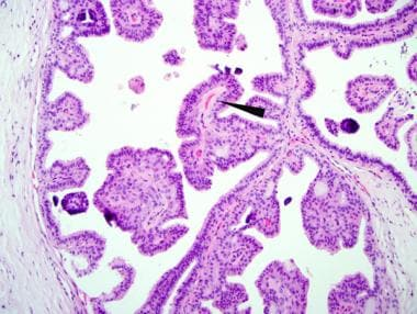 papillomatosis breast histology