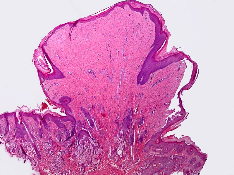 papillomatosis skin pathology outlines