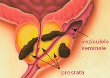 cancer de prostata nivel 1)