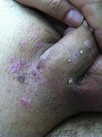 hpv warts blister