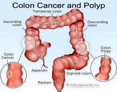 cancer colon anemia