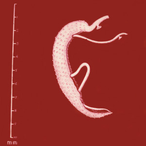 schistosomiasis worm size uterine cancer treatment