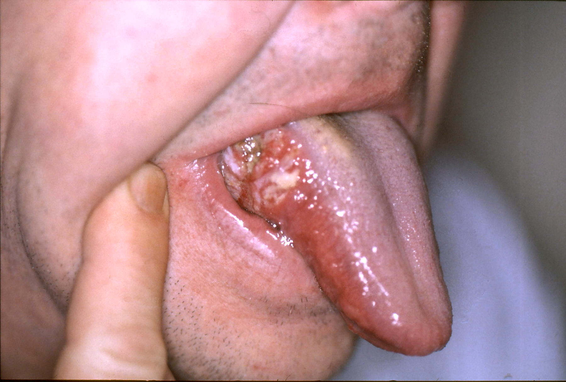 hpv cancer tongue picture)