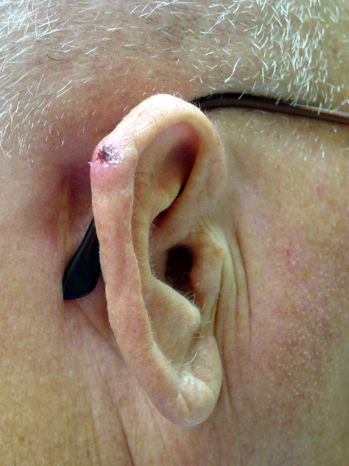 cancer on tip of ear