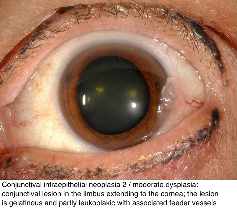 conjunctival papilloma pathology outlines)