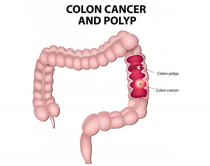 cancer colon complications)