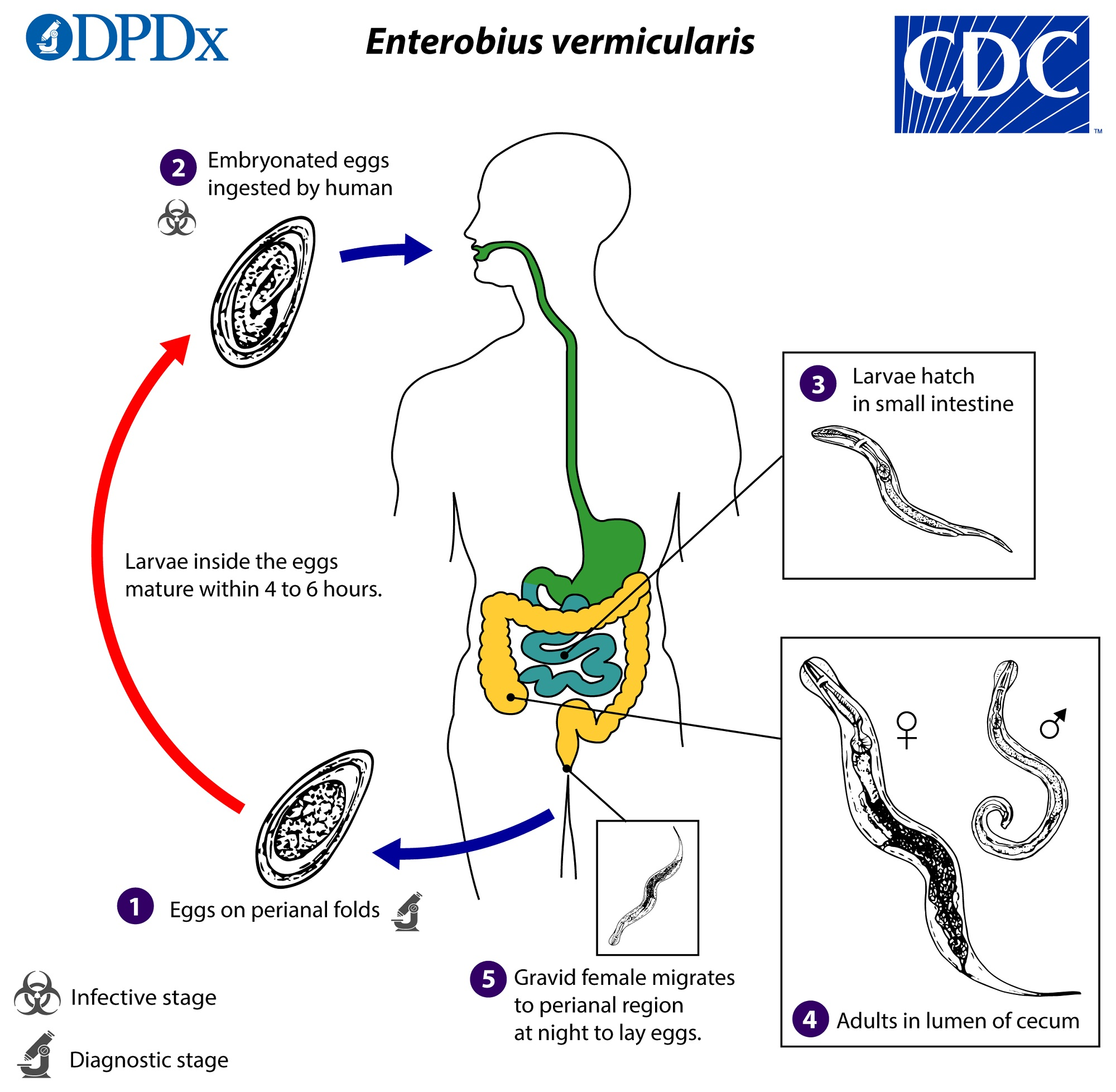 enterobius vermicularis infection)