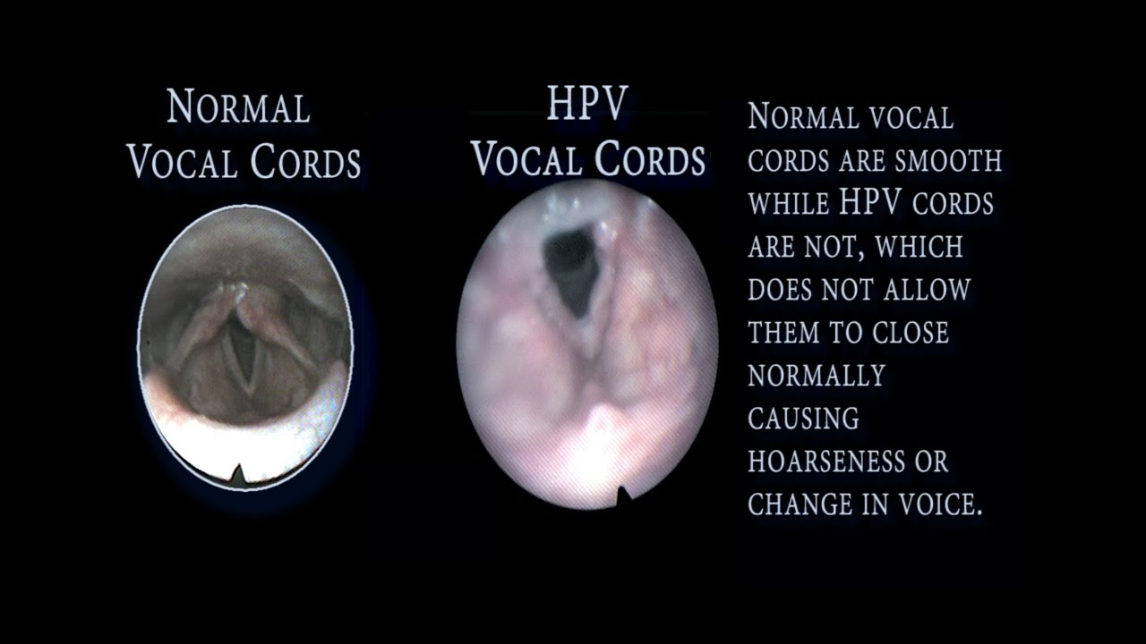 hpv papilloma vocal cord)