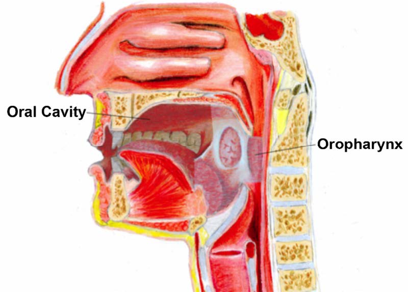 oropharynx cancer caused by hpv)