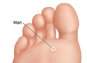 hpv warts in feet)