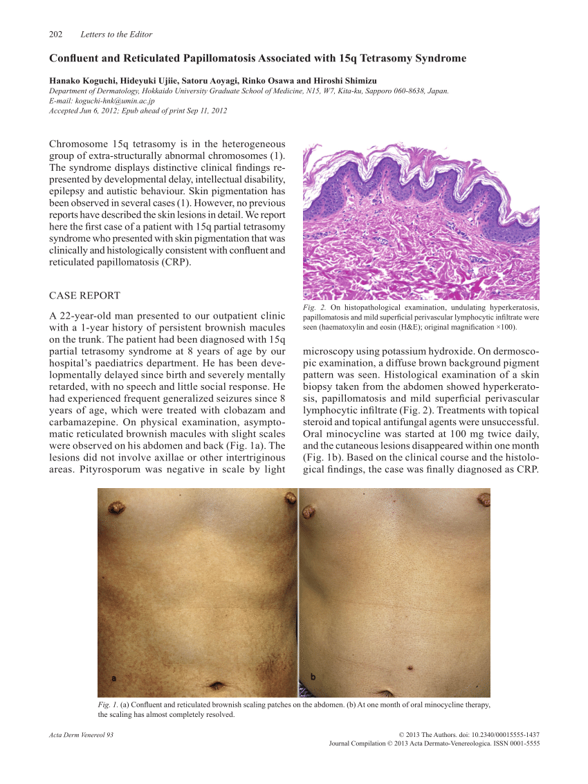 confluent and reticulated papillomatosis in pregnancy