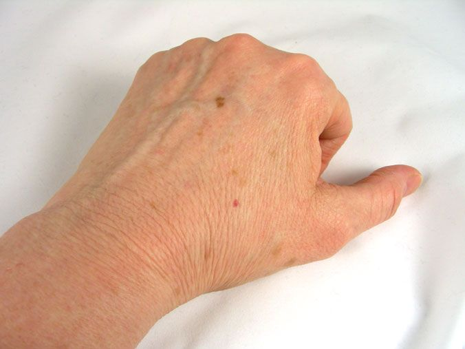 warts on hands black spots)