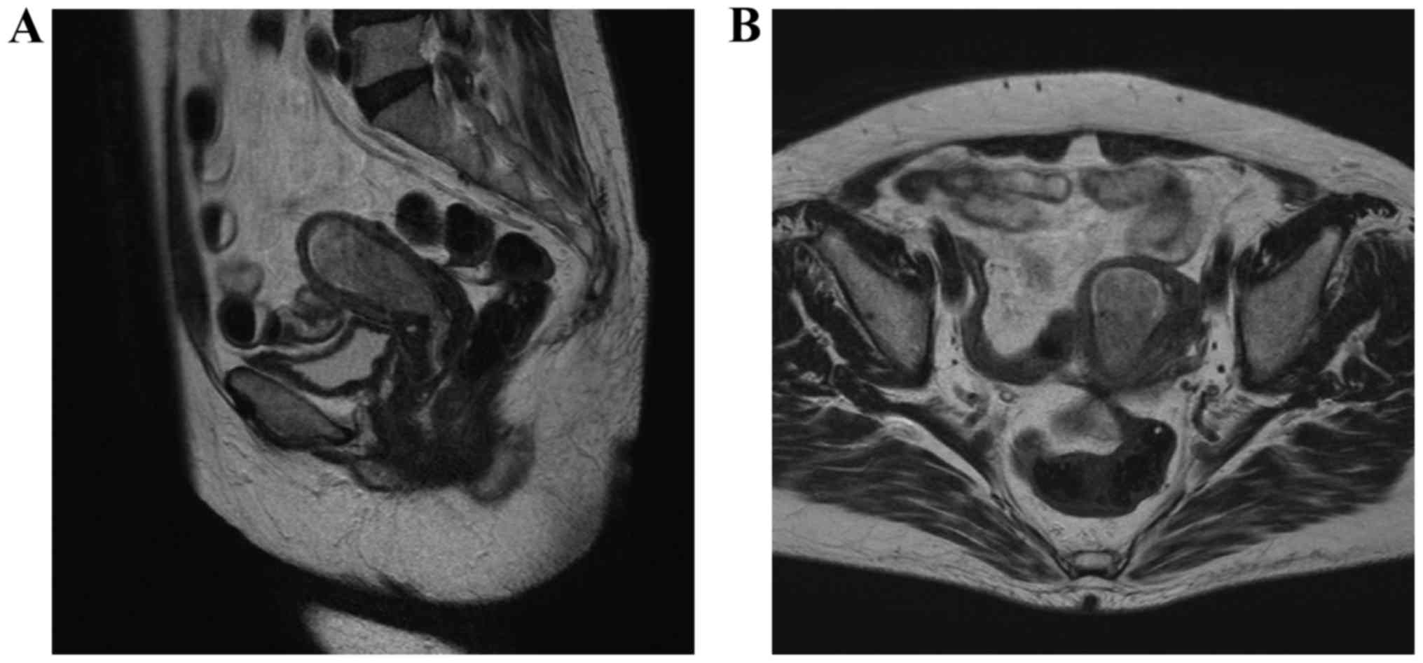endometrial cancer on ct