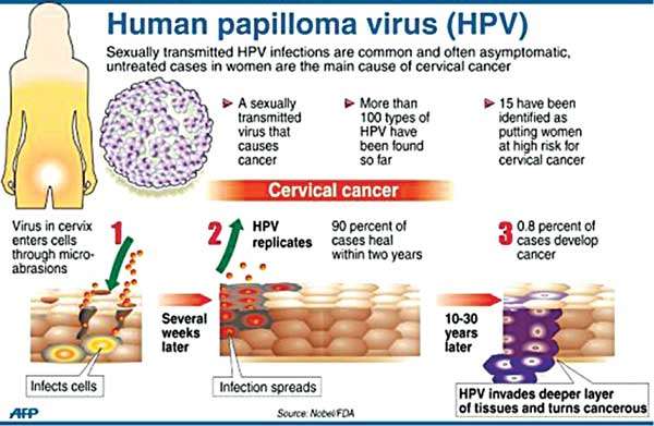 hpv virus and side effects parazitii timisoara 2019