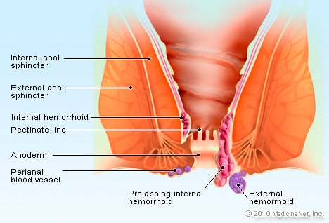 rectal cancer vs hemorrhoid)