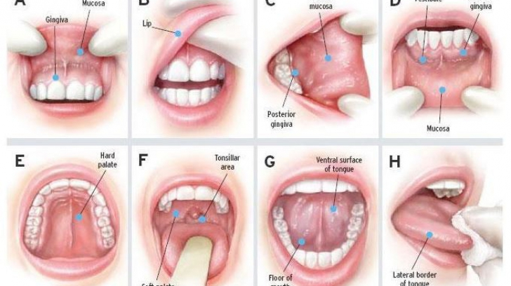 cancer gingival simptome