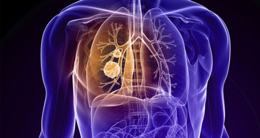 cancer pulmonar no microcitico)