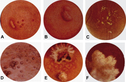 schistosomiasis review hpv face warts pictures