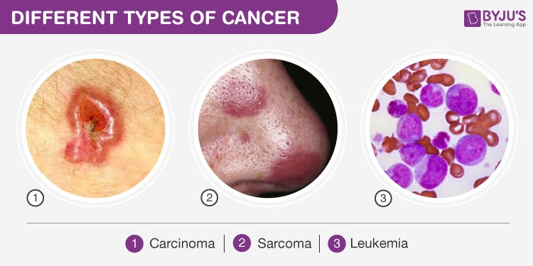 cancer sarcoma carcinoma