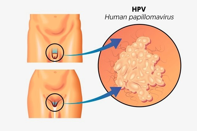 hpv causes cysts)