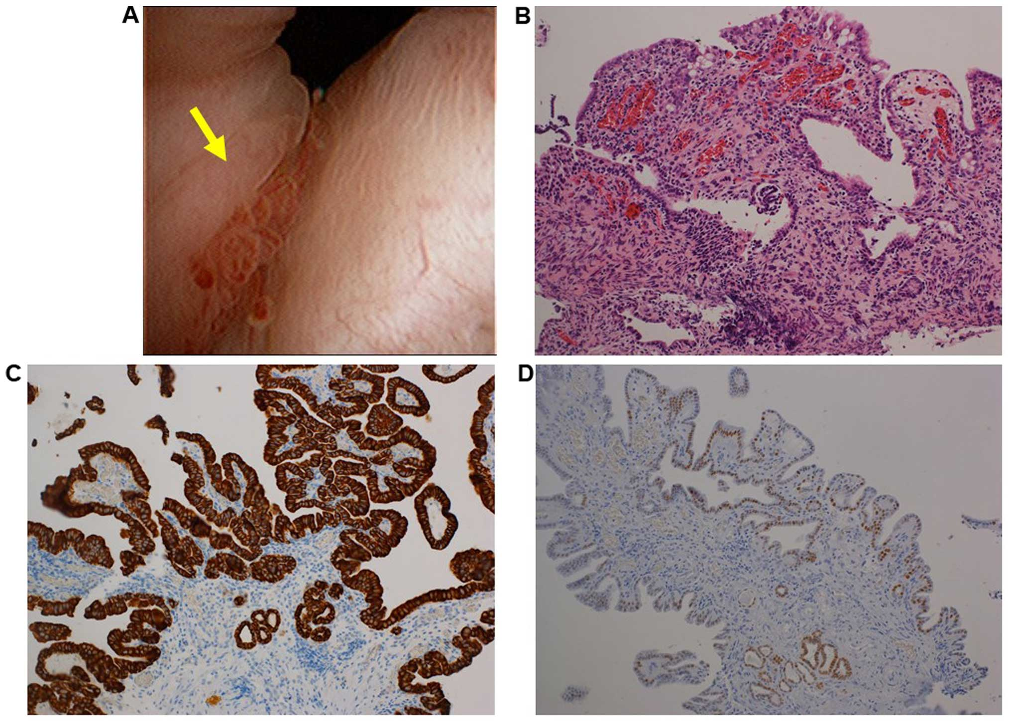 papillary lesions of urinary bladder