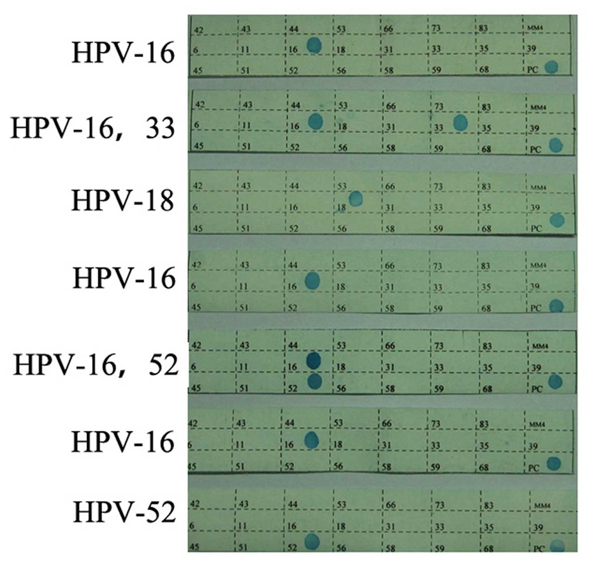 hpv 16 and squamous cell carcinoma)