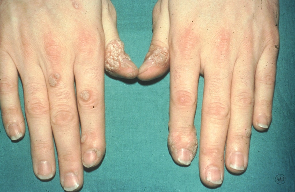 are warts on hands bad hpv virus cancer mechanism