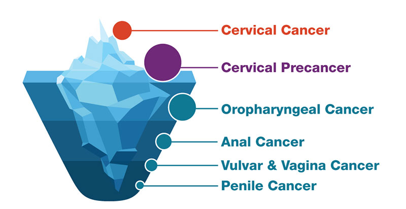 how does hpv become cancer)