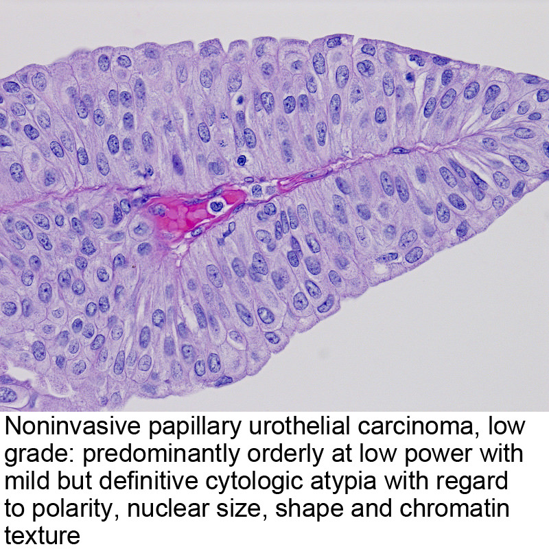 papillary urothelial cancer icd 10)