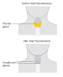 papillary thyroid cancer lobectomy vs thyroidectomy)